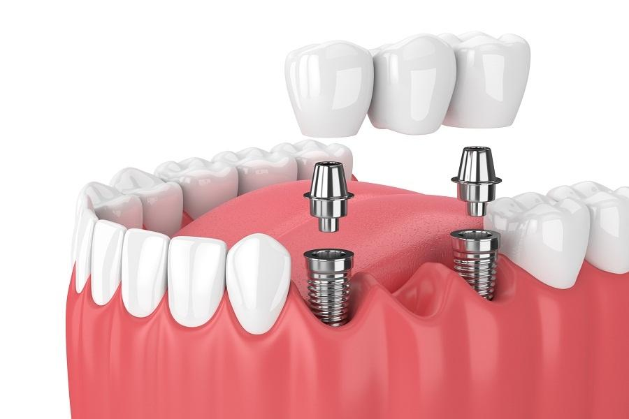 Z czego składa się implant zębowy? Budowa i struktura