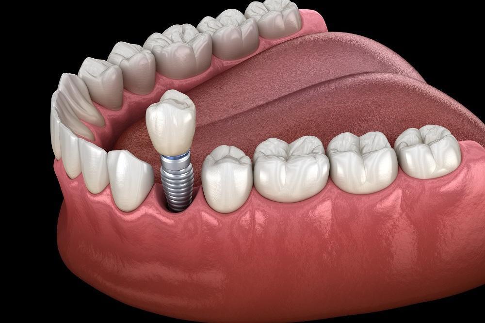 Dlaczego tytan to zalecany materiał do implantów zębowych?