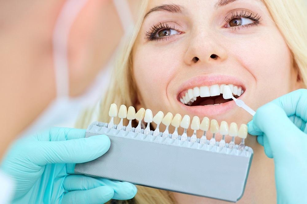 Jak dobierany jest kolor implantu zębowego?