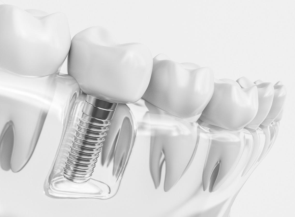 Wypełnienie na zawsze? Wytrzymałość implantów stomatologicznych
